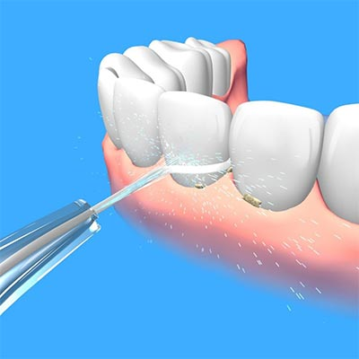 drawing of a water flosser cleaning front teeth